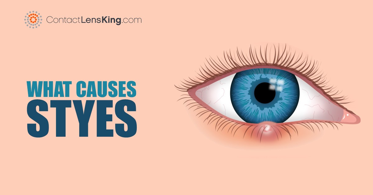 What Causes Styes